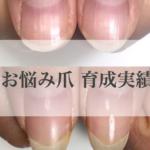 敦賀 ネイル 自爪育成・深爪緩和ができるサロンです♡!