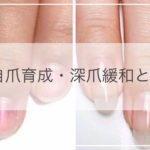 自爪育成・深爪緩和・コンプレックス爪緩和